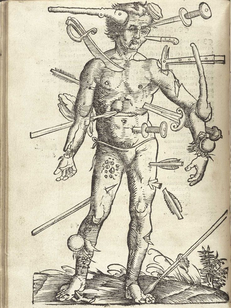 """Wound Man is an illustration which first appeared in European surgical texts in the Middle Ages. It laid out schematically the various wounds a person might suffer in battle or in accidents"""