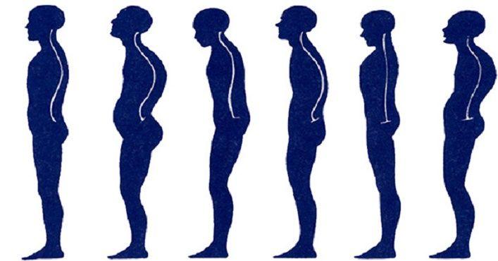 Como está a postura do seu corpo? Este é o melhor exercicio para corrigir a postura e evitar dores na coluna   Cura pela Natureza