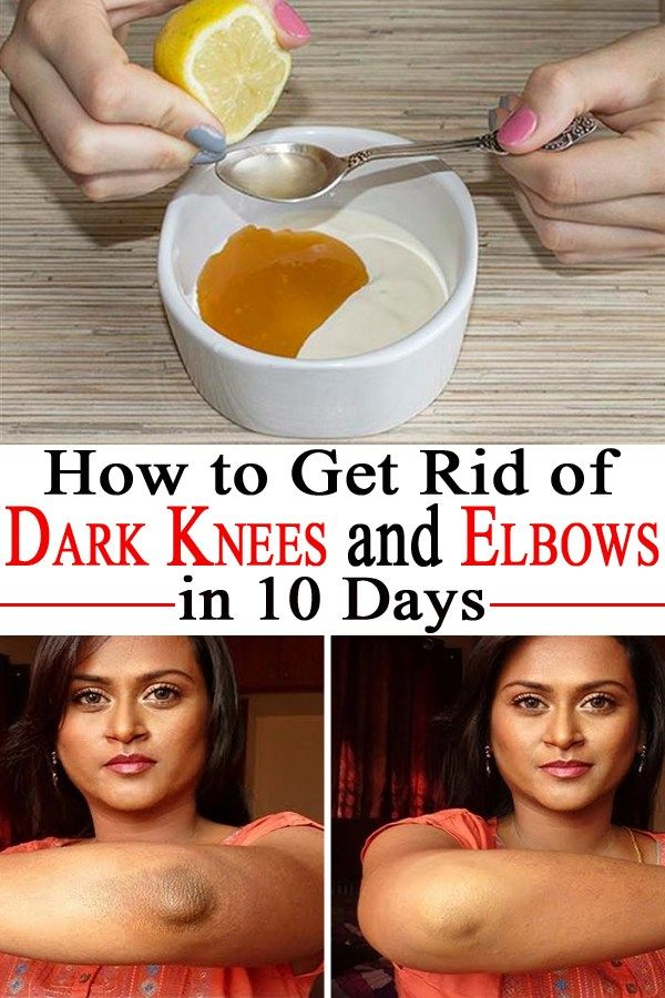 HOW TO GET RID OF DARK KNEES AND ELBOWS IN 10 DAYS :http://www.publichealthabc.com/get-rid-dark-knees-elbows-10-days/