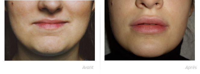 AVANT/APRÈS PERMALIP - Chirurgie & Médecine Esthétique - Paris