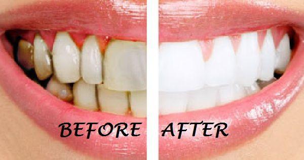Whitening your teeth by more than 1 ways. (1) Brush your teeth with coconut oil, (2) OIL PULLING, (3)Coconut oil + Baking Soda, (4) Banana peel.