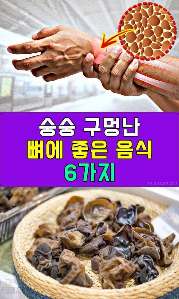 숭숭 구멍난 뼈 채워주는 음식 Best 6 음식 식품 아이디어 좋은 음식