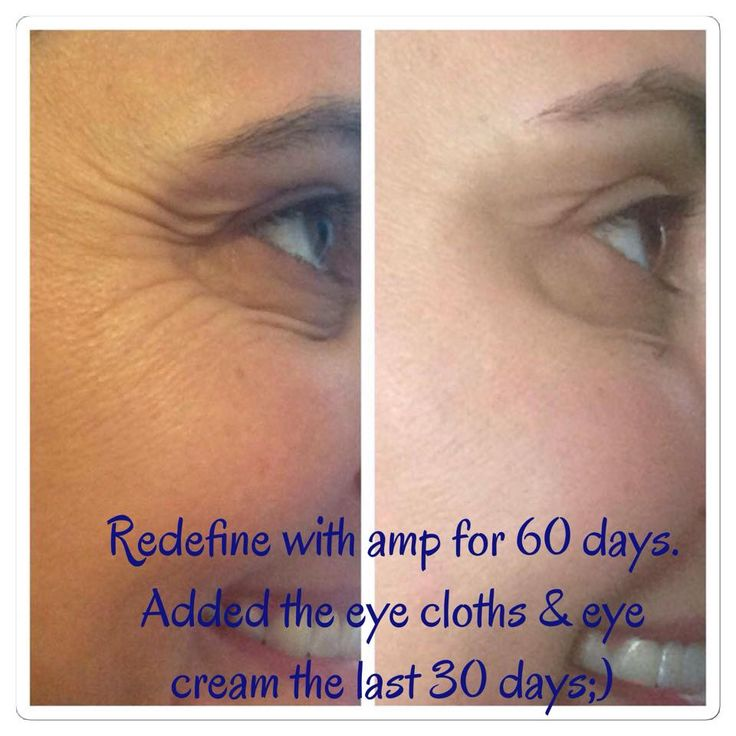 Y'all, REDEFINE is where it's at! Look at these results! Oh, and don't forget the AMP MD Roller and eye cloths. R+F has a way for you to get all this and more at a reduced price. Message me and we'll get you started!