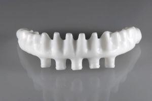 CAD-CAM Zahnersatz aus Zirkon - Brückengerüst einer implantatgetragenen zahnbrücke vor keramischer Verblendung