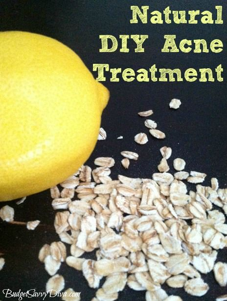 How to Make a Natural DIY Acne Treatment