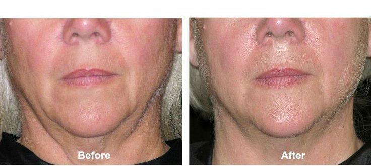 Thermage Neck Tightening Before And After About Face Skin Care Skin Tightening Skin Tightening Treatments Laser Skin Tightening