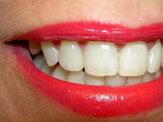 Treatment Procedures of Gum Diseases