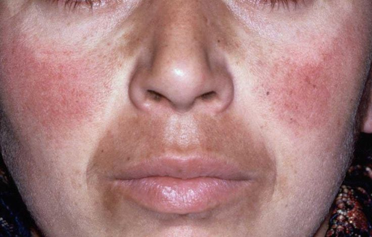 7 Dos And Don'ts Of Treating Melasma  http://www.prevention.com/beauty/7-dos-and-donts-of-treating-melasma?cid=NL_PVNT_-_04162016_WhatToDoDarkerSkinOnLip_hd