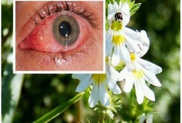 Θαυματουργό: Αυτό είναι το βότανο που βελτιώνει την όραση ακόμα και σε άτομα μεγαλύτερα των 70 ετών!