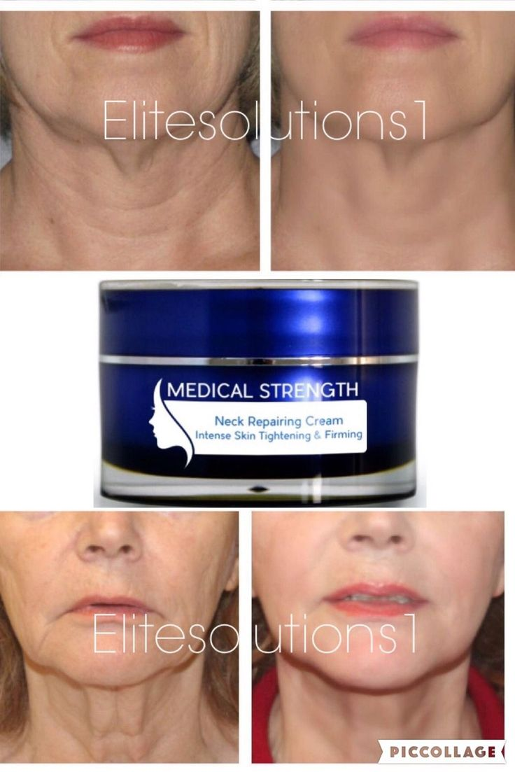 Beverly hill md lift and firming reviews - Best 25 Best Neck Firming Cream Ideas On Pinterest Neck Exercises Double Chin Exercises For Double Chin And Reduce Double Chin