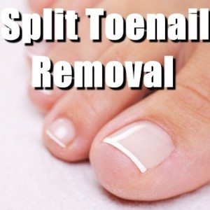 Dr. Ali Sadrieh performed a split toenail removal procedure on The Doctors.