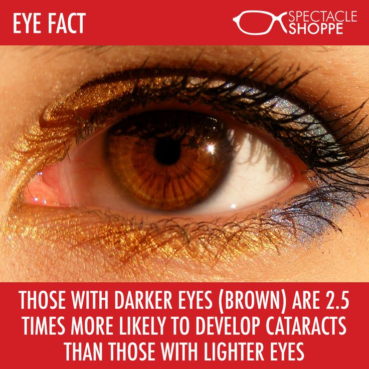 Those with darker eyes (brown) are 2.5 times more likely to develop cataracts than those with lighter eyes.   #eyefacts #eyes #science