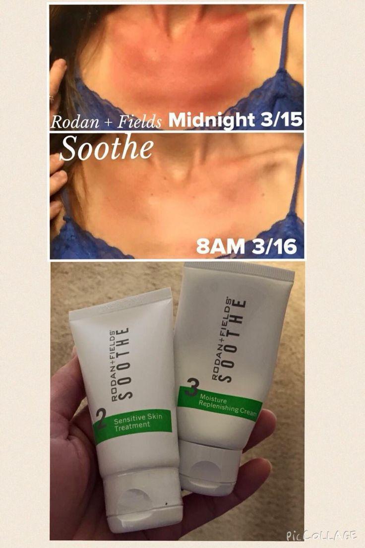 Heal sunburns quick! Safe for all ages! https://jenniferhughesdmd.myrandf.com