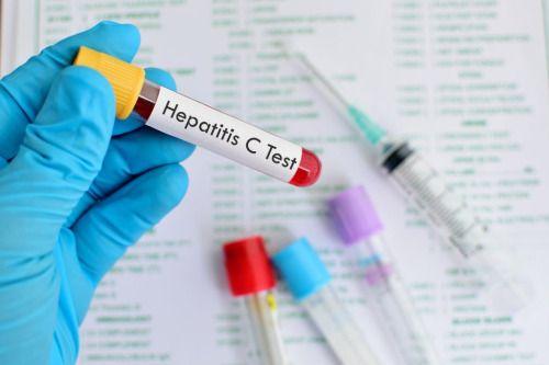 Epidemia silenciosa provocada por la Hepatitis C -...