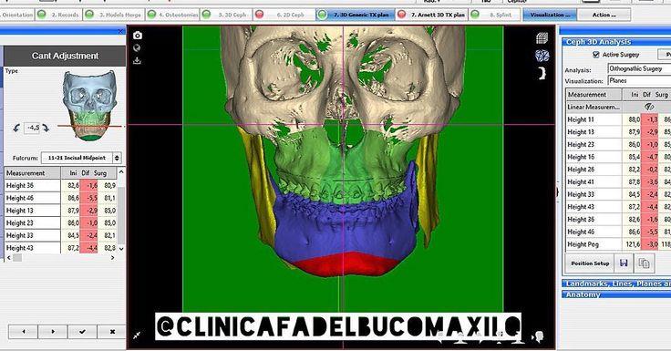 Planejamento 3D para Cirurgia Ortognatica!!!#odontologia #odonto #surgery #oralsurgery #oralsurgeon #dentist #dentista #dentistry #buco #bucomaxilo #maxillofacial #maxillofacialsurgery #odontoporamor #saudebucal #cirugiabucal #unigranrio #saogoncalo #niteroi #riodejaneiro #oralmedicine #cirurgiaoral #cirurgiaortognatica #humanteeth #dentalpicture #dentalphotography by clinicafadelbucomaxilo Our Oral Surgery Page: http://www.myimagedental.com/services/oral-surgery/ Google My Business…