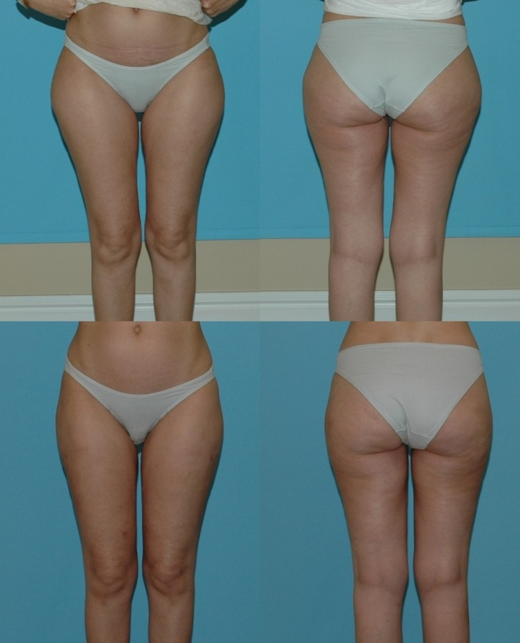 Thighs & Buttock Liposuction: Before and After Photos