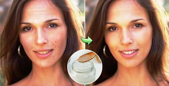 L'olio che elimina rughe, punti neri e macchie della pelle, rinforza i capelli e li fa ricrescere
