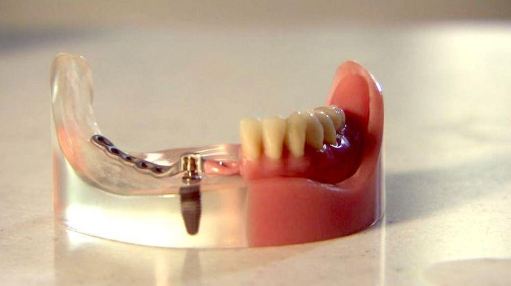 Zahnersatz ist meist nicht nur teuer, sondern auch unangenehm, weil zur Befestigung häufig gesunde Zähne abgeschliffen werden. Ein Alternative ist geklebter Zahnersatz.