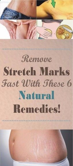 To find out how to Remove Stretch Marks Fast With These 6 Natural Remedies - Check this great Article and Repin !