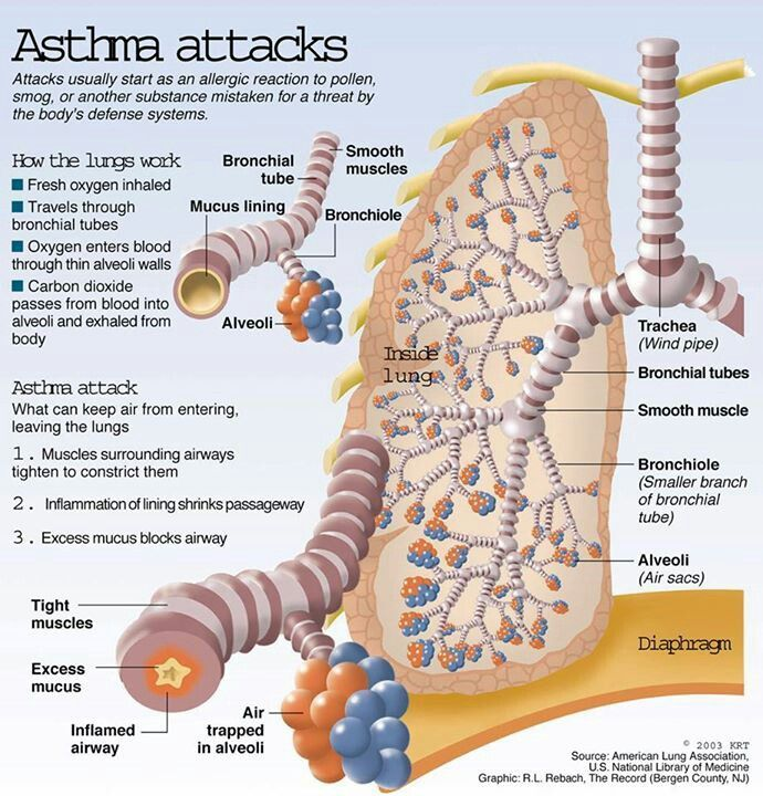 Asthma Bronchiale : Changes in the bronchioles during an asthma attack