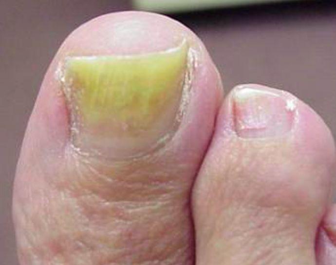 Senracine longle sur le pied le traitement avec les plaques