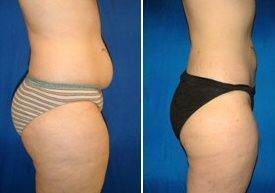 Belly Liposculpture Before and After  #Belly #liposculpture #Belly #lipos