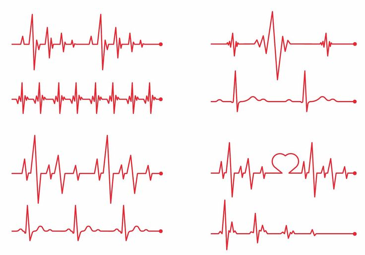 Heartbeat Monitor Graphic Line