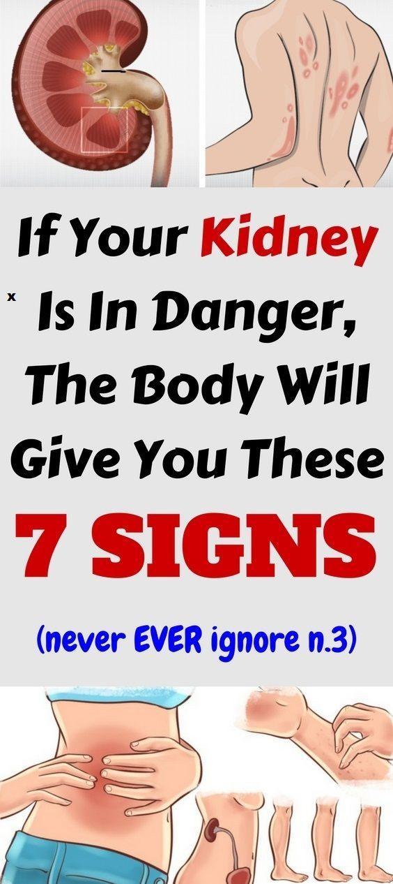 If Your Kidney Is in Danger, the Body Will Give You These 7 Signs ...