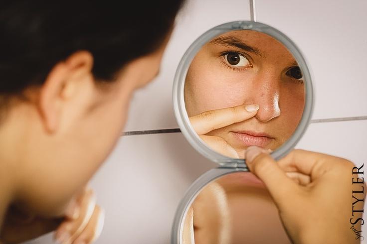 Jak leczyć, usunąć i pozbyć się trądziku, pryszcze krosty