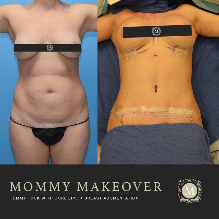 """Immediate results from a """"Mommy Makeover"""" This patient had ..."""