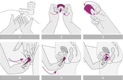Insertion and Removal Process - An innovative menstrual cup - Lifecell International, India