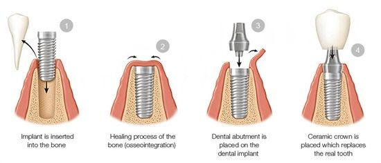 Dentaltown - A dental implant (also known as an endosseous implant or fixture) is a surgical component that interfaces with the bone of the jaw or skull to support a dental prosthesis such as a crown, bridge, denture, facial prosthesis or to act as an orthodontic anchor.
