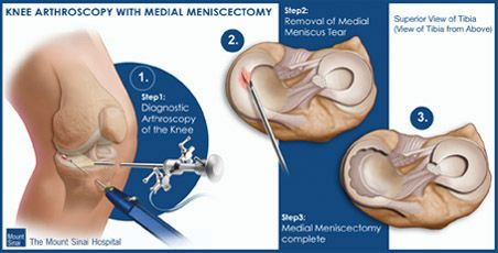 Knee Arthroscopy with Medial Meniscectomy - www.mountsinai.org