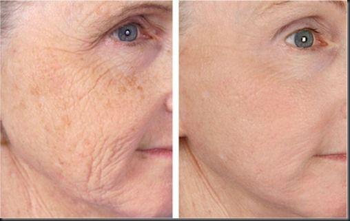 Las arrugas son una de las consecuencias del proceso de envejecimiento, ya sea fisiológico o inducido. Con la edad, la división celular se hace más lenta, lo que provoca que la red de elastina, las