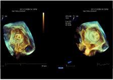 ASDVerschluss | Isar Herz Zentrum, Kardiologie