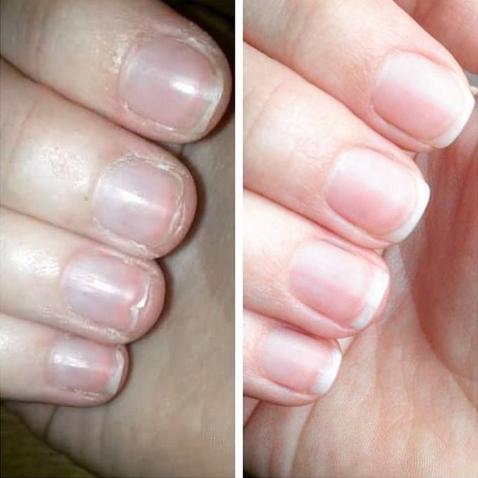 129 best Nails images on Pinterest | Colorful nail, Make up looks ...