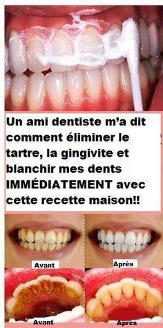 pate dentaire pour gingivite