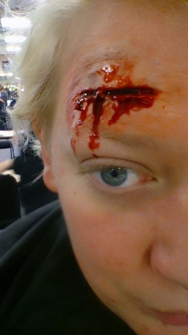 The first wound I created for a special effects makeup. To create this I used scar wax, fresh scab and congealed blood.