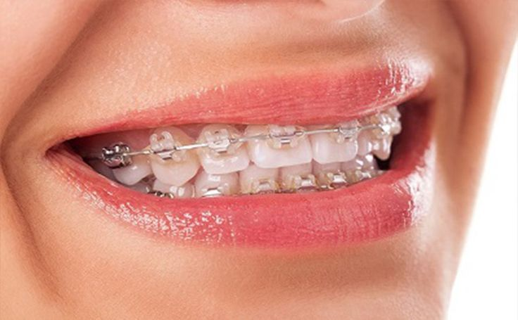 It is better to find a correct Invisalign Melbourne to get the correct treatment for the money paid. Captivate dental has experienced dentists who can give the best treatment.