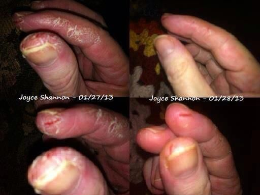 Before and After, psoriasis