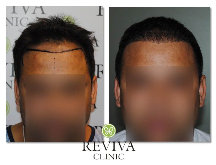 Reviva Clinic - our excellent team of hair transplant doctor who will specialize in their work, the Clinic have exclusive hair transplant cost in India. Cost of Hair Transplantation	http://www.revivaclinic.com/hair-loss.aspx