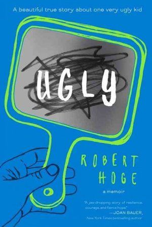 Ugly: A Memior by Robert Hoge