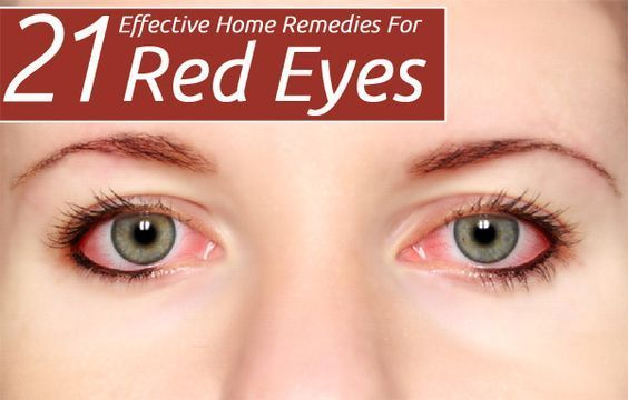 Red eyes develop with many causes. At times, they can be a serious problem associated with many other signs. Know the 21 best remedies for red eye infections!