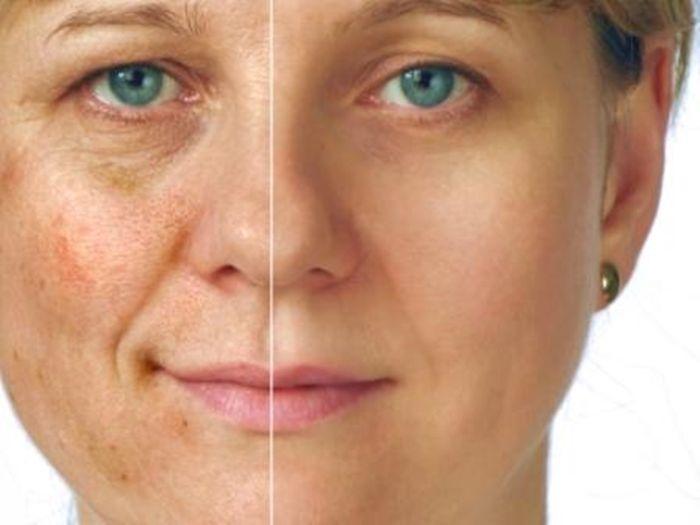 8 házi gyógymód öregedési és pigment foltok ellen