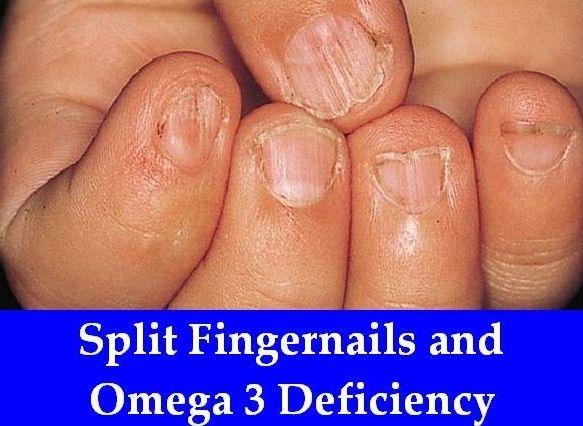 Split Fingernails and Omega 3 Deficiency