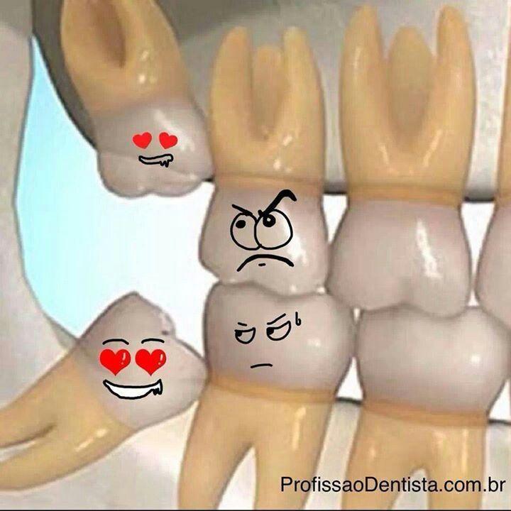Terceros molares impactados. Tijuana Dental Spa Recuerda...... que la limpieza dental es dos veces al año. Agenda tu cita hoy (664)685.00.58