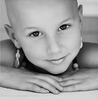 children suffer from alopecia and it can be so hard for them to feel like they fit in. we need to teach our kids acceptance