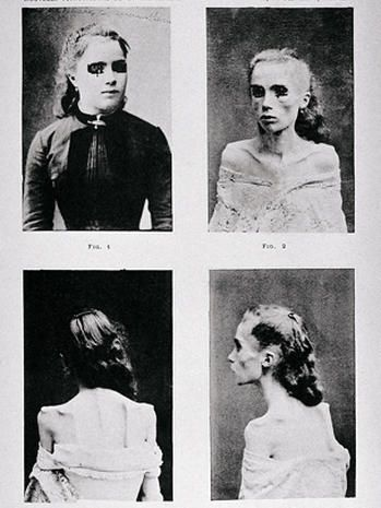 """Even in the 19th century, psychiatrists saw patients with eating disorders. These images, published in Paris in 1892, depict a young woman with """"visceral hysteric anorexia"""" who gradually gave up eating until she developed cachexia - a condition where the body is so malnourished it can't be reversed. Back then, anorexia was thought to be a teenage girl disease."""