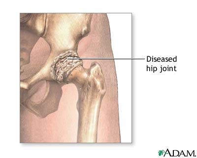 Rheumatoid Arthritis Explained With Pictures and Images: Rheumatoid Arthritis - Hip Joint