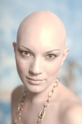 The vast majority of women will suffer from some level of female balding ...bald is beautiful